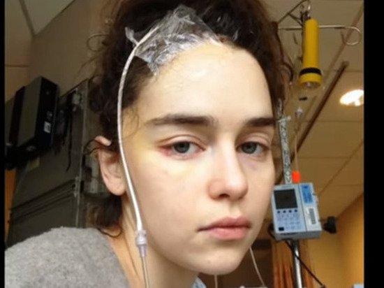 В Сети появились фото звезды «Игры престолов» после инсульта