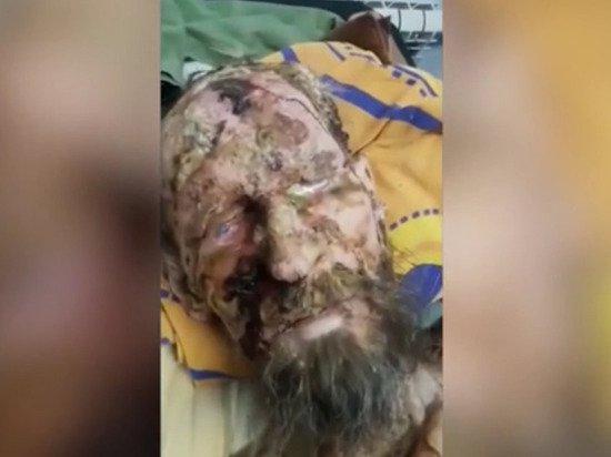 «Живший в берлоге россиянин» оказался страдающим псориазом жителем Казахстана