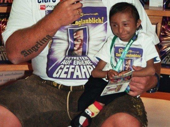 Самый маленький человек в мире умер в 27 лет