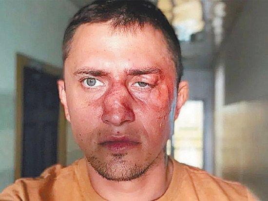 Друг Павла Прилучного озвучил детали избиения актера