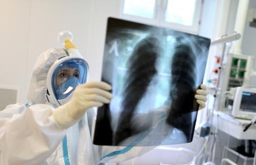 Воробьев назвал количество свободных коек для пациентов с COVID-19