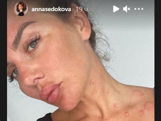 Седокова показала измененное болезнью лицо