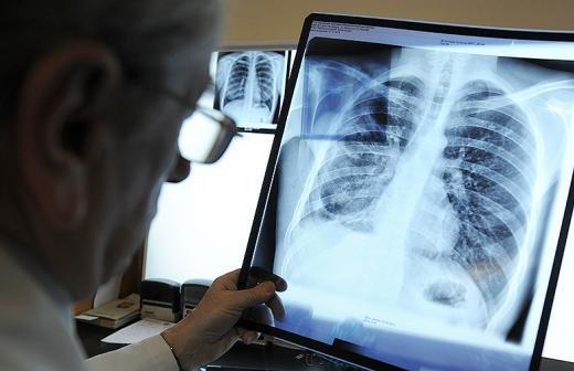 В Минздраве заявили об уменьшении риска рака горла после отказа от курения