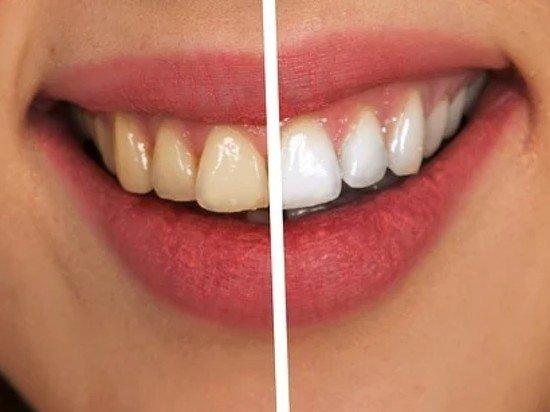 Врач рассказала, какой вред может принести отбеливание зубов