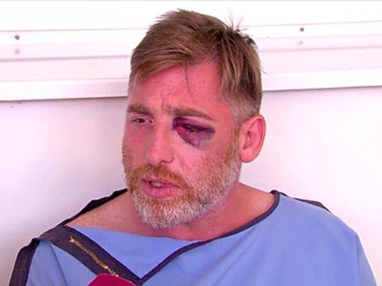 Названа причина смерти избитого противниками ЛГБТ грузинского журналиста
