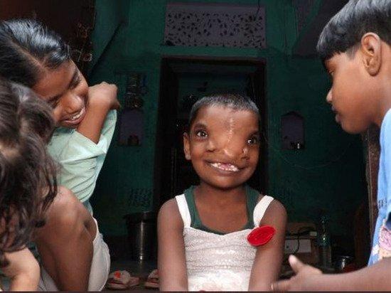 В Индии девочку с двумя носами признали воплощением божества