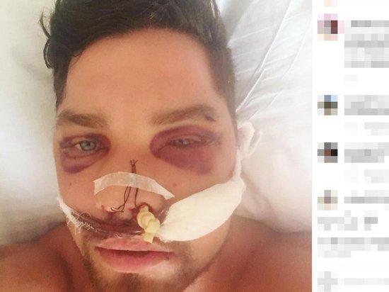 Избитый в метро Роман Ковалев опубликовал новое фото из больницы