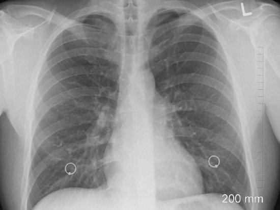 Выявлен редкий симптом рака легких